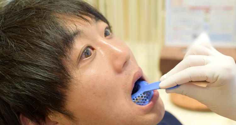 マウスピース用の歯型とり(下の歯)