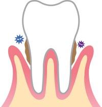 歯周病過程3