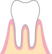 歯周病過程1