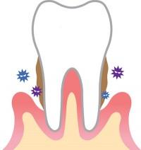 歯周病過程2